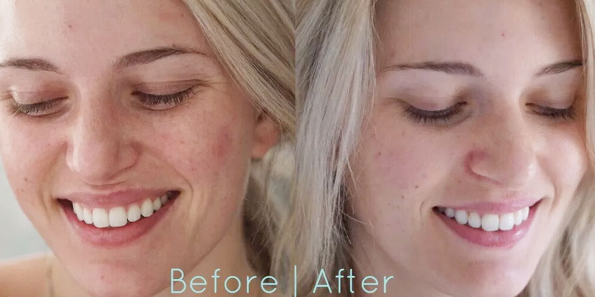 LED Face Mask Before & After
